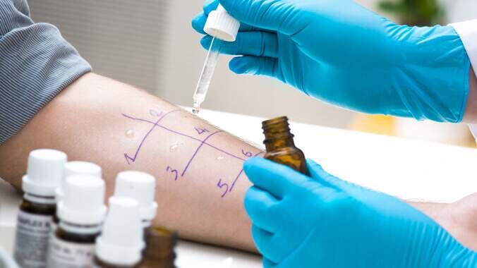Um profissional de saúde com um frasco aberto na mão esquerda e um conta gotas na mão direita, fazendo um teste de alergia em uma pessoa. Ao redor alguns frascos de remédio