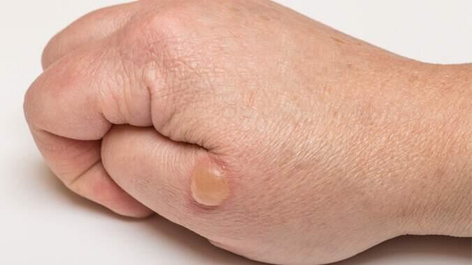 A imagem de uma mão com uma bolha de água proveniente de uma queimadura