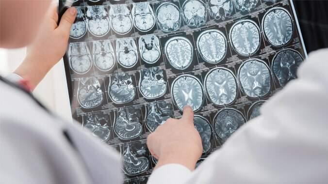 Dois médicos analisando um exame de ressonância magnética com imagens de um cérebro
